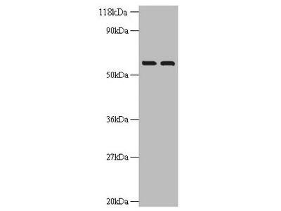 Rabbit anti-human Inosine-5'-monophosphate dehydrogenase 2 polyclonal Antibody