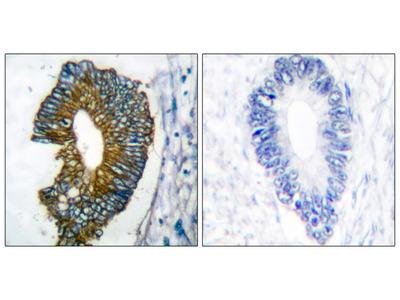 Keratin 18 Antibody