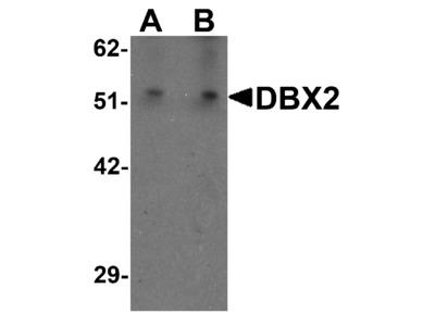 DBX2 Antibody