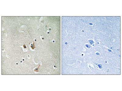 CKS2 Antibody