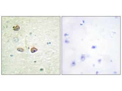 5-HT-1B Antibody