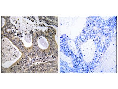 STEA2 Antibody