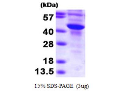 SuLT2B1, 1-365aa, Human, E Coli