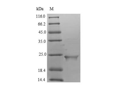 Recombinant Human Putative inactive neutral ceramidase B (ASAH2B)