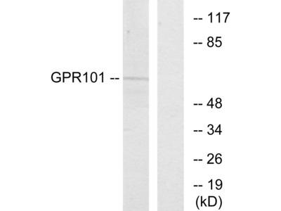 GPR101 Antibody