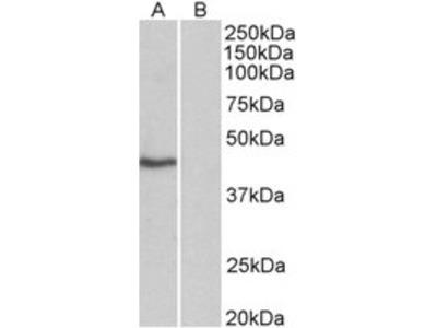 Goat anti-TBP /Transcription factor IID (isoform1) Antibody
