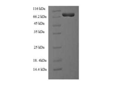 Recombinant Human Plastin-2 (LCP1)