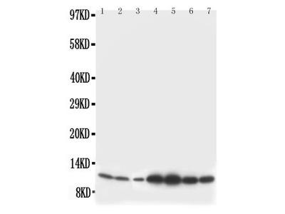 Anti-S100 beta antibody