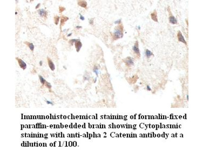 alpha 2 Catenin Antibody