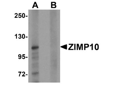 ZIMP10 Antibody