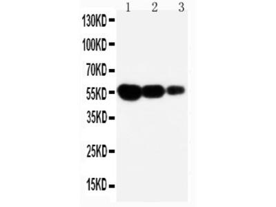 Anti-CD95 antibody