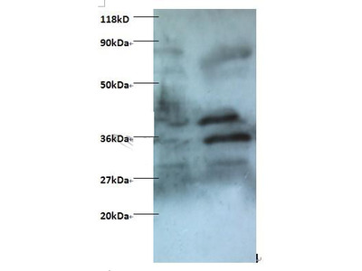 Rabbit anti-human Zinc finger BED domain-containing protein 1 protein polyclonal Antibody, Biotin conjugated