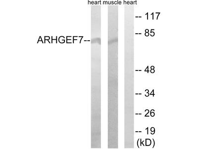 ARHGEF7 Antibody