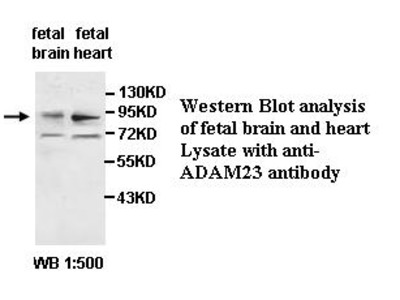 ADAM23 Antibody