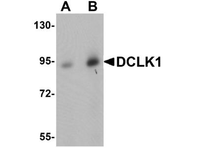 DCLK1 Antibody