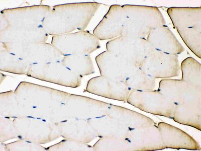 Anti-Troponin T antibody (monoclonal)