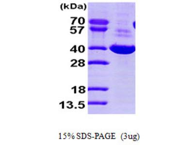 AKR1C1, 1-323aa, Human, His tag, E Coli