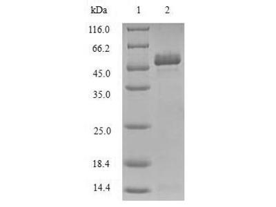 Recombinant Human Toll/interleukin-1 receptor domain-containing adapter protein (TIRAP)