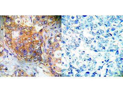 4E-BP1 (Ab-65) Antibody