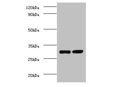 Rabbit anti-human Cytochrome b-c1 complex subunit 8 polyclonal Antibody