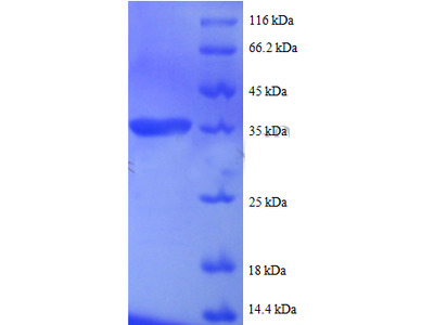 Recombinant human Small nuclear ribonucleoprotein G