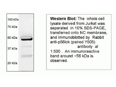 Rabbit anti p56lck (Non-phosphspecific)