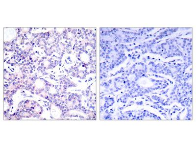 NF kappa B-p105/p50 (Ab-893) Antibody