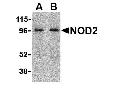 NOD2 Antibody
