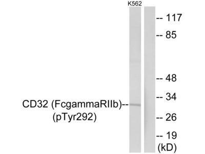 CD32 (Phospho-Tyr292) Antibody