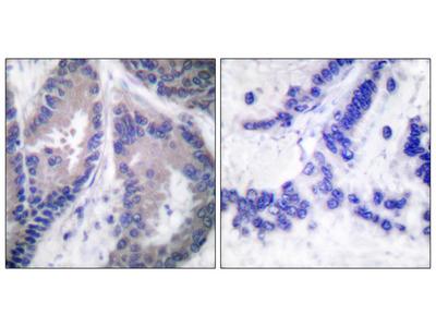 Collagen alpha 1 XVIII Antibody