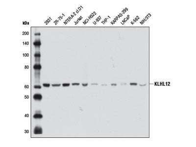 KLHL12 (2G2) Mouse mAb