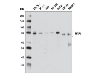 WIP1 (D4F7) Rabbit mAb
