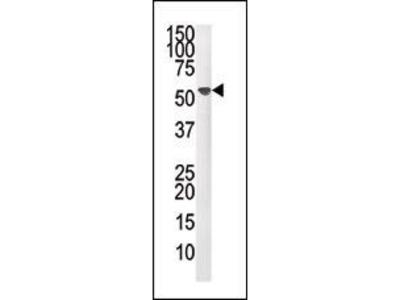 Anti-PPM1F antibody, N-term