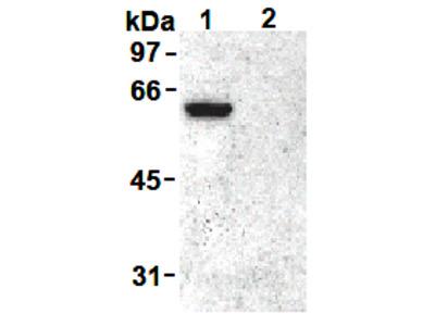 anti Vimentin pSer55