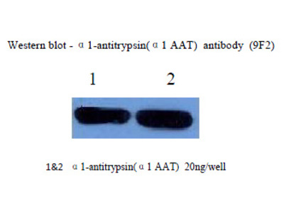 anti Alpha-1-antitrypsin