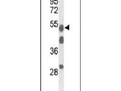 A1BG Polyclonal Antibody