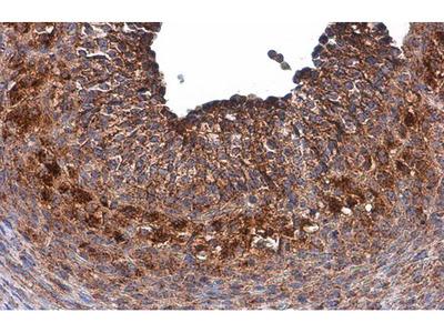 GALC Polyclonal Antibody
