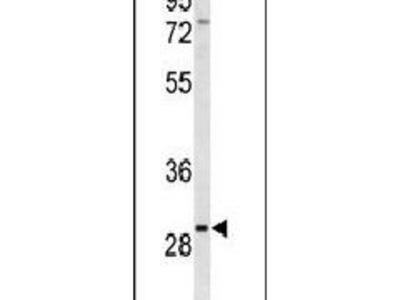 CLRN3 Polyclonal Antibody