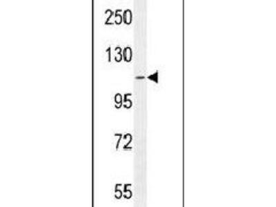 ATP8B2 Polyclonal Antibody