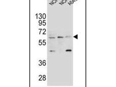 LILRA2 Polyclonal Antibody