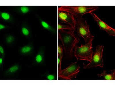 C/EBP beta Polyclonal Antibody