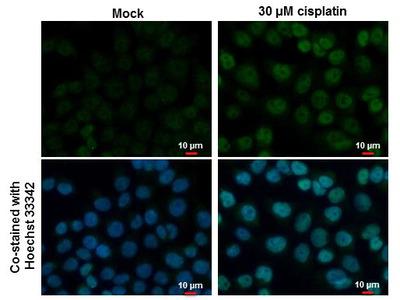 p53 Polyclonal Antibody