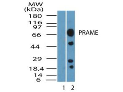 PRAME Polyclonal Antibody