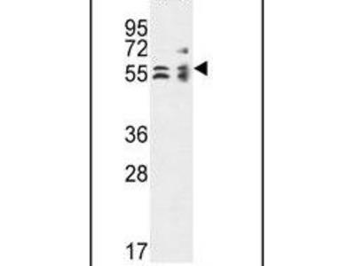 TBCE Polyclonal Antibody