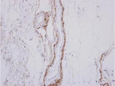 SH3RF1 Polyclonal Antibody