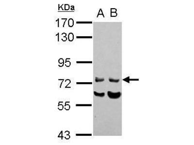 INPP5J Polyclonal Antibody