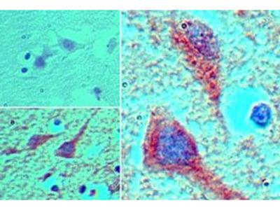 MEIS1 Polyclonal Antibody