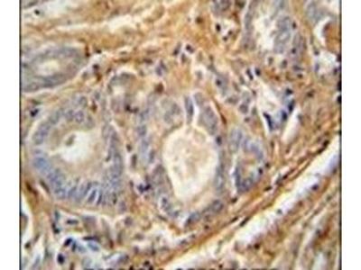 PCOTH Polyclonal Antibody