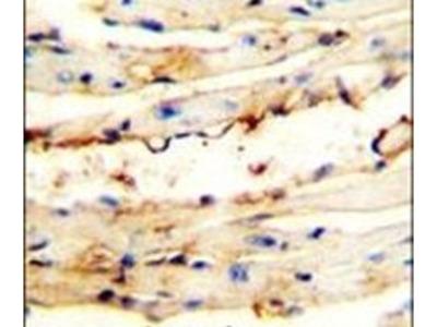 CRCT1 Polyclonal Antibody