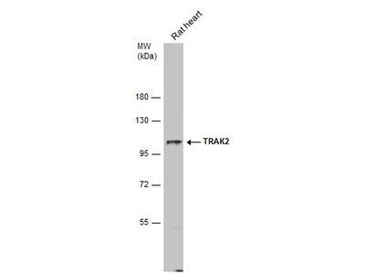 TRAK2 Polyclonal Antibody